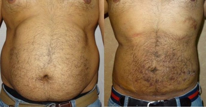 جراحی شکم قبل و بعد