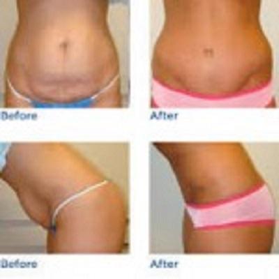 قبل و بعد جراحی شکم - جراحی زیبایی شکم