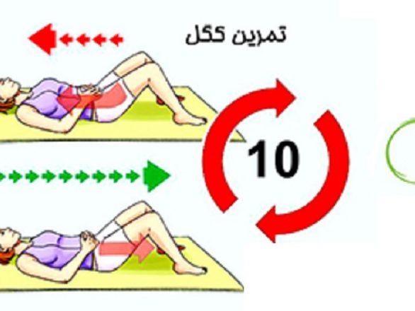 درمان تمرین کگل جهت تقویت عضلات کف لگن