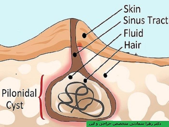 درمان سینوس پیلونیدال در پایین کمر توده و غده مویی یا همان کیست مویی