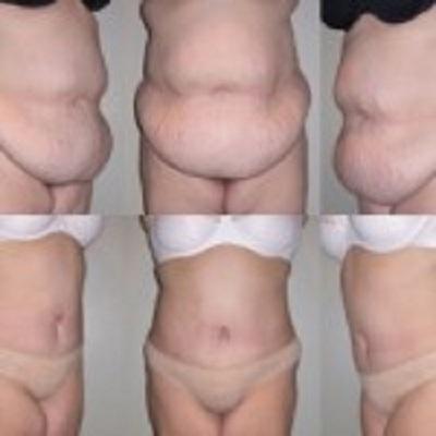 ابدومینوپلاستی تامی تاک - جراحی زیبایی شکم