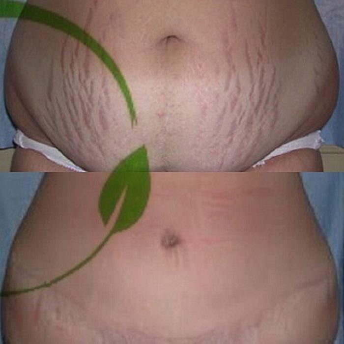 ابدومینوپلاستی بعد از زایمان - جراحی زیبایی شکم