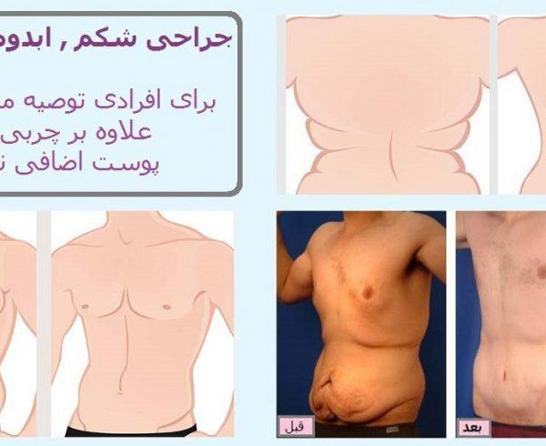 قبل و بعد جراحی زیبایی شکم دکتر سعادتی تامی تاک ابدومینوپلاستی