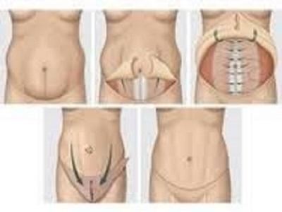 ابدومینوپلاستی ماژور - جراحی زیبایی شکم