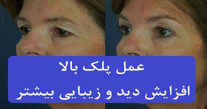 عمل پلک بالا بلفاروپلاستی پلک بالا عمل جراحی زیبایی پلک