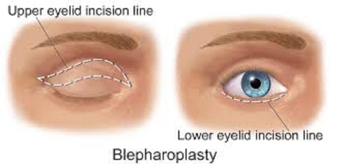 عمل جراحی زیبایی پلک چشم یا بلفاروپلاستی