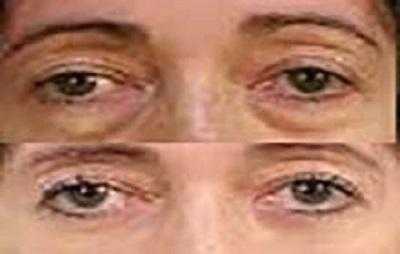 بلفاروپلاستی عمل جراحی زیبایی پلک چشم قبل و بعد