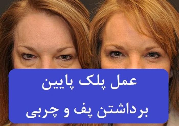 بلفاروپلاستی یا عمل جراحی پلک چشم جهت برداشتن و اصلاح بافت پشت و زیر چشم کاربرد دارد در تصویر قبل و بعد جراحی پلک پایین را می بینید