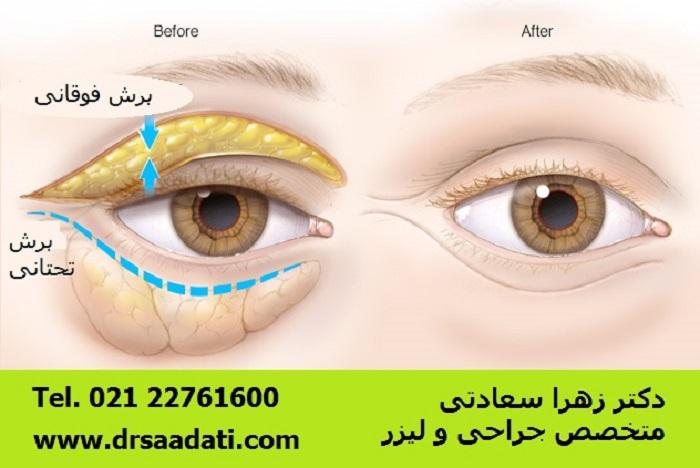 بلفاروپلاستی یا عمل جراحی پلک چشم جهت برداشتن و اصلاح بافت پشت و زیر چشم کاربرد دارد در تصویر برش فوقانی و برش تحتانی را می بینید