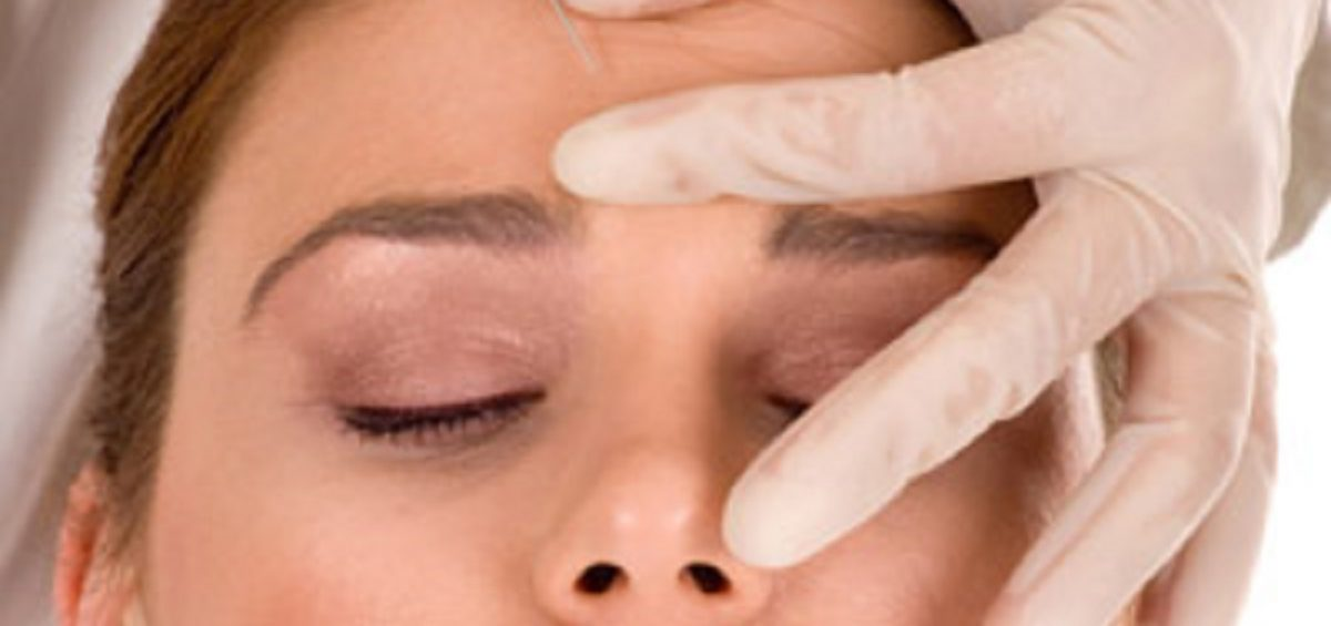 تزریق بوتاکس به پیشانی و خط اخم و اطراف چشم