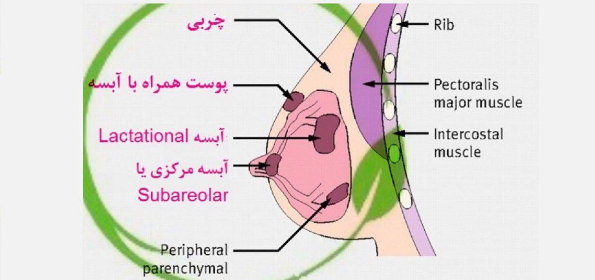 آبسه سینه شامل آبسه های سطحی پوست داخل چربی سینه و یا مرکزی در نوک سینه می باشد