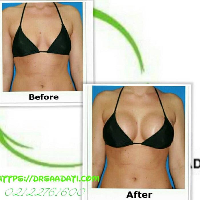 جراحی پروتز سینه به منظور افزایش سایز سینه و جراحی بزرگ کردن سینه تصویر قبل و بعد