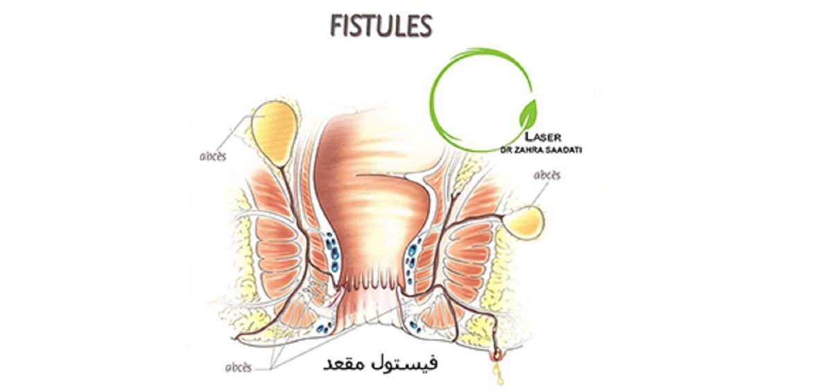 فیستول ها و انواع فیستول مقعد آناتومی انواع فیستول مقعد