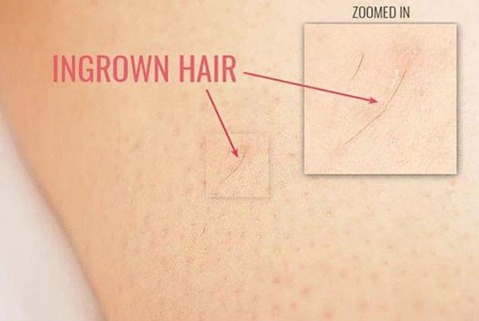 رویش مو بعد از لیزر