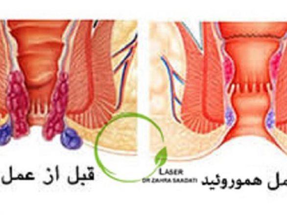 تصویر قبل و بعد لیزر و درمان هموروئید بواسیر همورویید