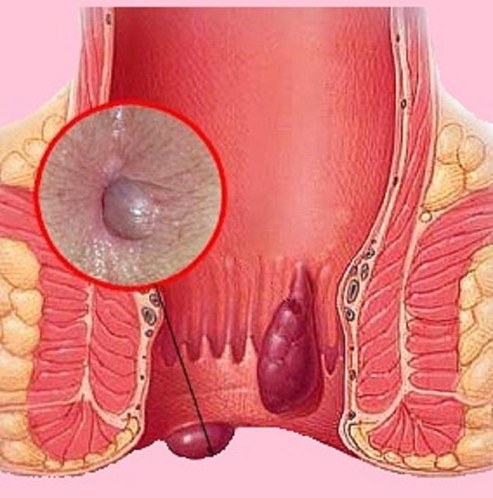 лечение неммороя в бжной корее отзывы