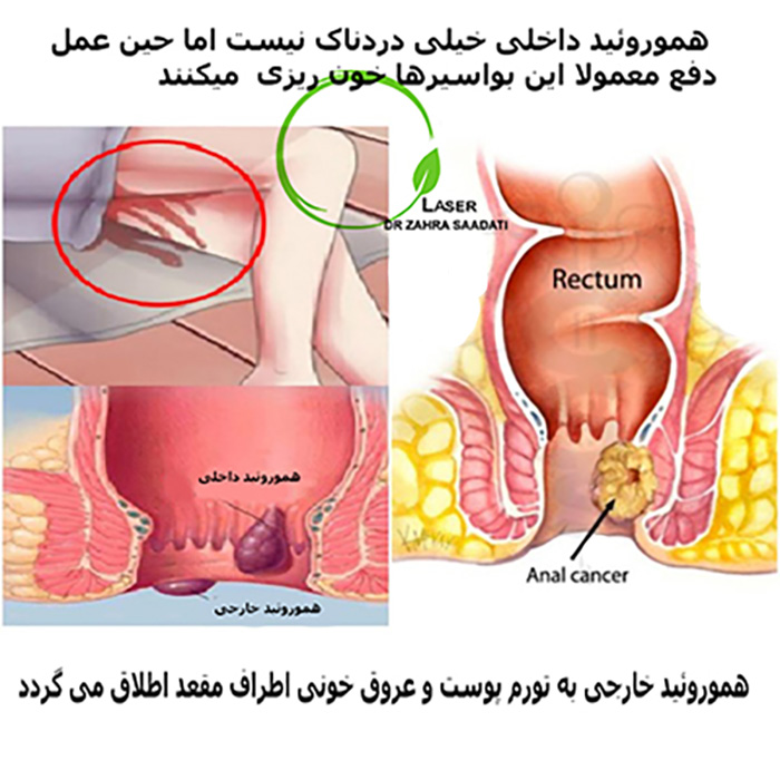 تشخیص هموروئید داخلی و خارجی