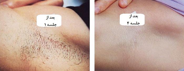 لیزر حذف موهای زائد قبل و بعد