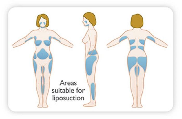 مناطق لیپوساکشن بدن