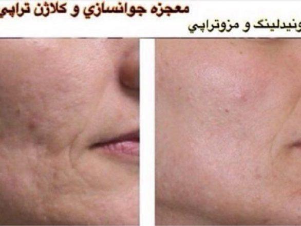 میکرونیدلینگ آکنه جای جوش و جوانسازی پوست صورت