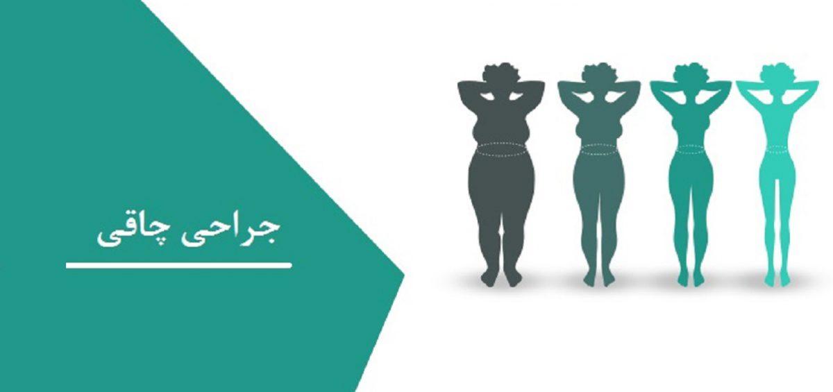 جراحی چاقی نوعی جراحی زیبایی برای افرادی که کاهش وزن شدید داشته اند