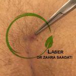 عود کیست مویی بعد از جراحی سنتی در این روش احتمال عود و بازگشت بیماری نسبت به روش های دیگر زیاد است و بیمار مجدد تحت جراحی قرار می گیرد