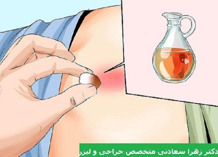 درمان کیست مویی بدون جراحی با روغن