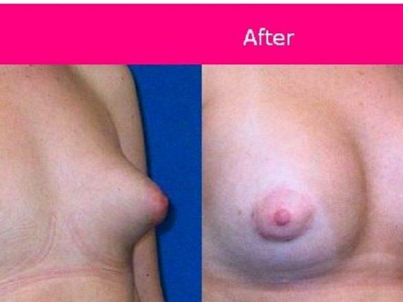جراحی پروتز سینه به منظور قرینه سازی و افزایش سایز سینه زنان