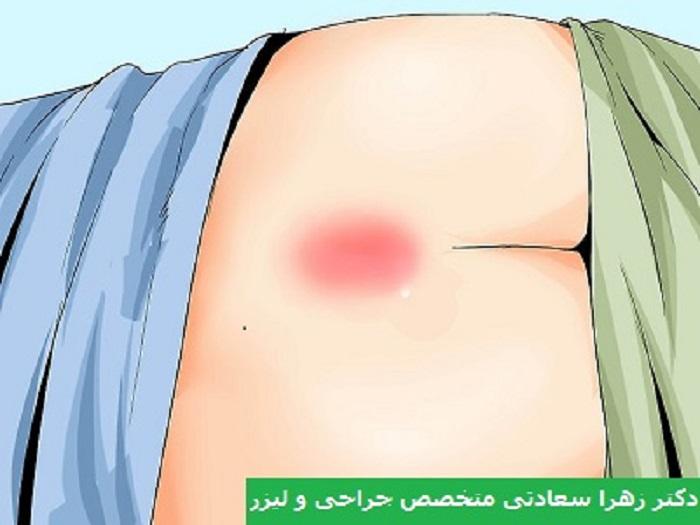 درمان سینوس پیلونیدال بدون جراحی و با روش های خانگی