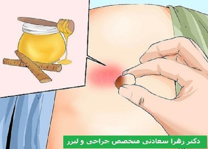 درمان کیست مویی بدون جراحی مالیدن عسل برای ترمیم زخم کیست مویی