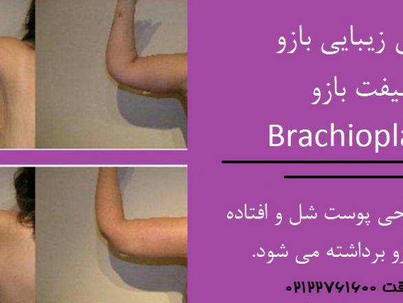 قبل و بعد جراحی زیبایی بازو جهت کوچک کردن و لیفت بازو