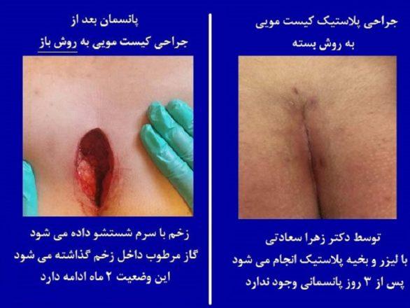 پانسمان زخم سینوس پیلونیدال یا کیست مویی به روش جراحی باز و بسته