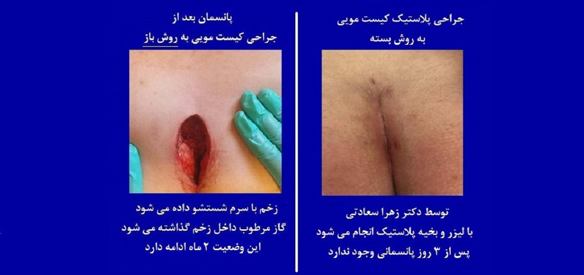 لیزر کیست مویی ,بهترین دکتر کیست مویی.درمان کیست مویی,درمان قطعی کیست مویی,کاربرد لیزر در درمان کیست مویی