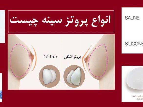 انواع پروتز سینه شامل پروتز سینه نمکی سیلیکونی و سالین و انواع گرد و قطره اشکی در انواع صاف و بافت دار