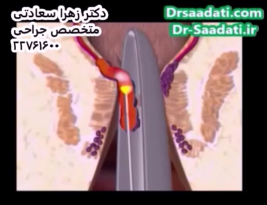 عمل جراحی هموروئید با لیزر