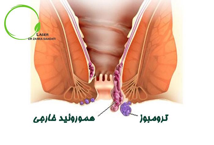 درمان هموروئید ترومبوزه
