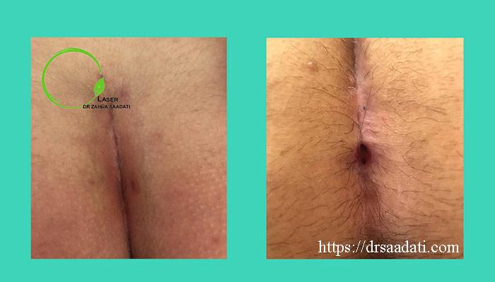 کیست مویی بعد از جراحی با لیزر