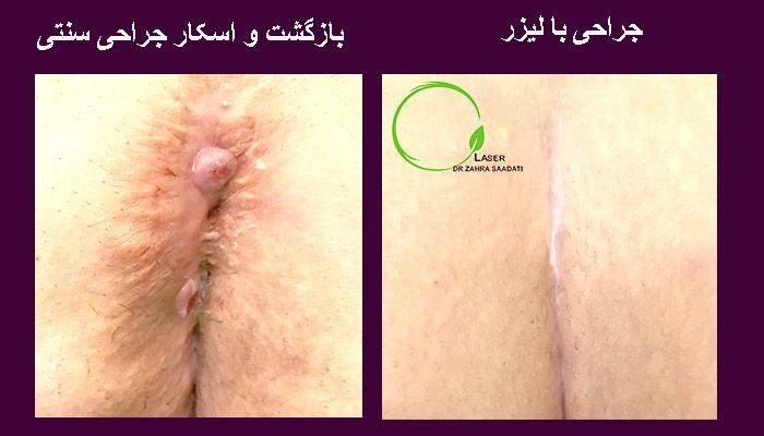 سینوس پیلونیدال قبل و بعد از جراحی با لیزر