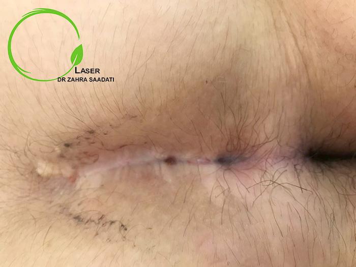 عود کیست مویی بعد از جراحی به روش باز